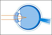 Myopia & Hyperopia